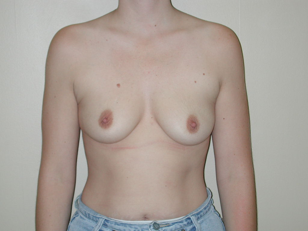 Apologise, but 36b boob picture